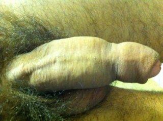sessuologo andrologo urologo napoli vomero