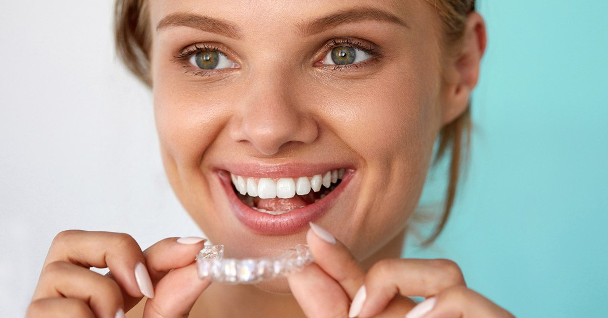 How Long Does Invisalign Take to Work? A Guide on Braces