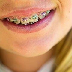 Apparecchi ortodontici bambini