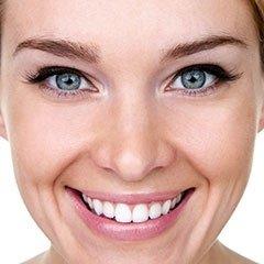 Sbiancamento denti con luce laser