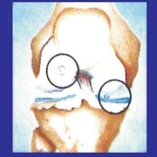 usura cartilagine
