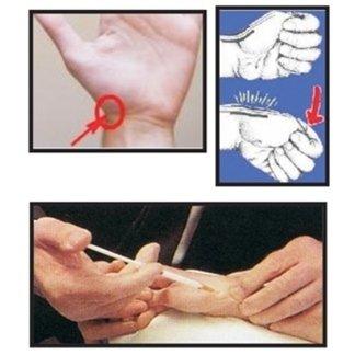 trattamento tenosinovite