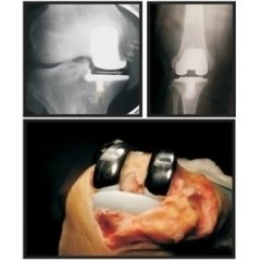 sostituzione protesica