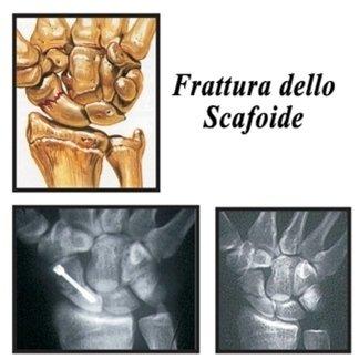frattura scafoide