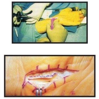 tunnel carpale diagnosi