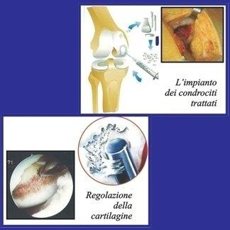 asportazione cartilagine