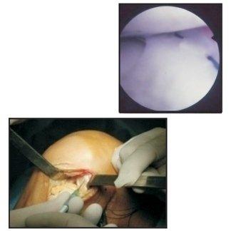 sutura meniscale