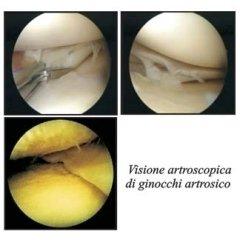 immagini artrosi