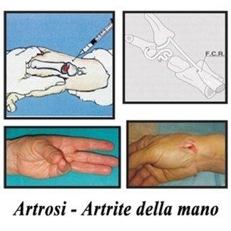 trattamento artrosi artrite mano