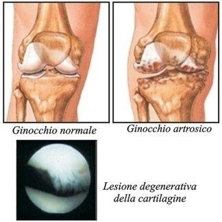 trattamento chirurgico artrosi