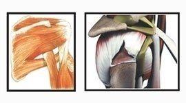 patologia ortopedica, cura della spalla, lussazione spalla