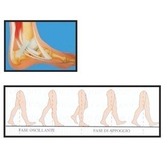 chirurgia del piede
