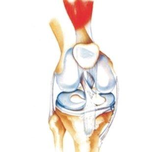 artroscopia ginocchio