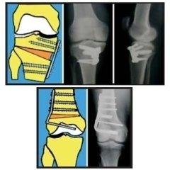 osteotomia di tibia