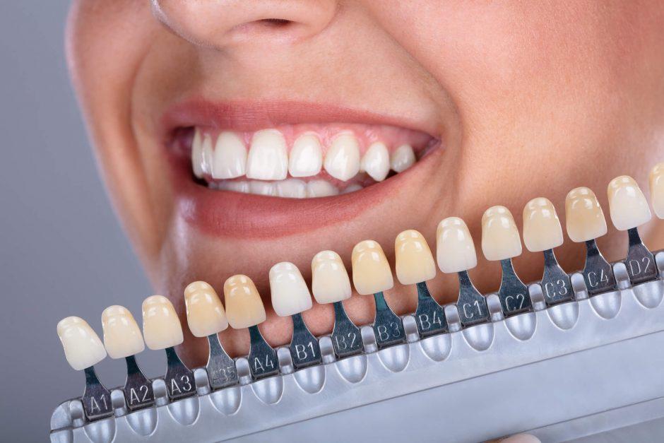 a680cd0a7 Os tratamentos odontológicos estéticos conseguem modificar a coloração dos  dentes