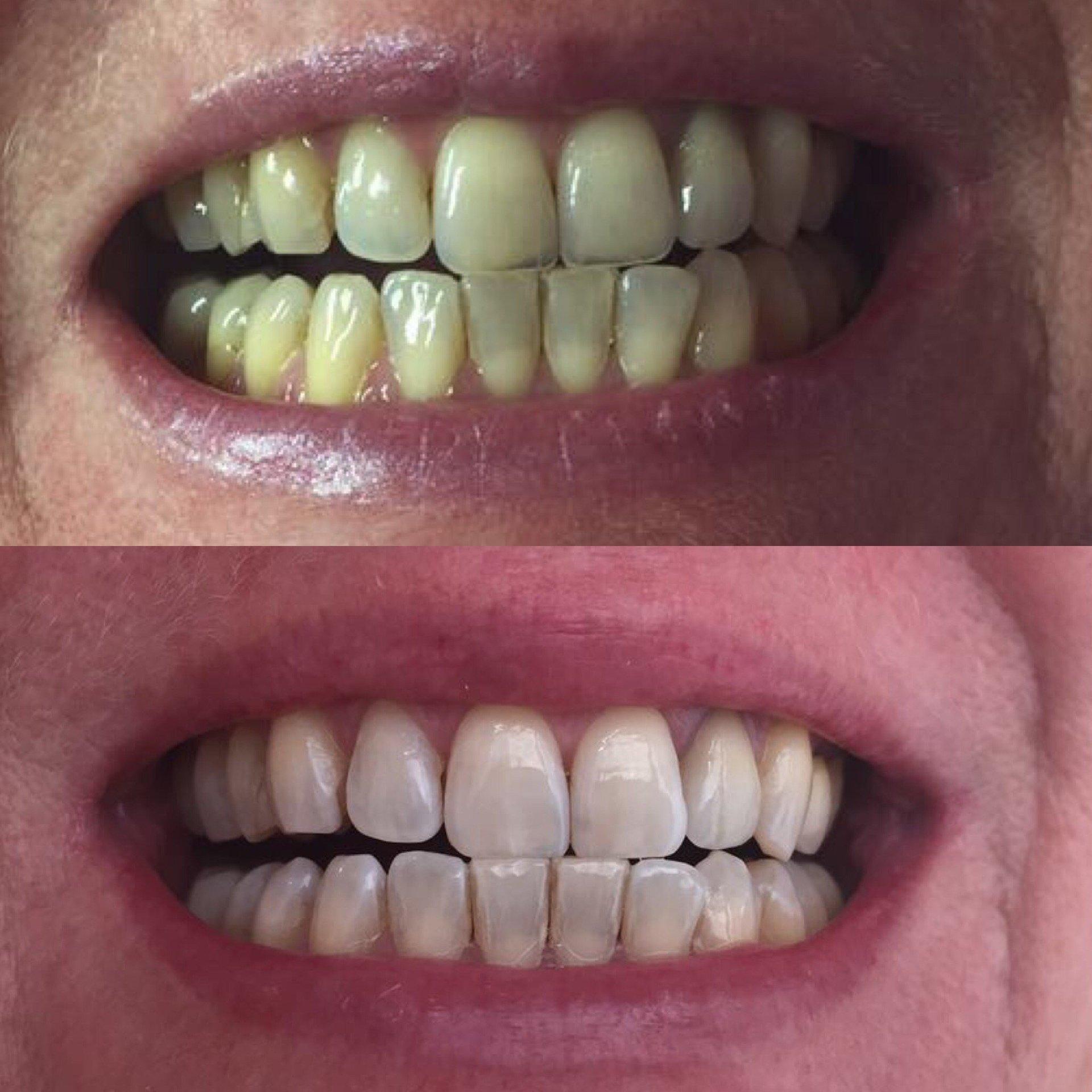 Erfahrungen mit smile secret