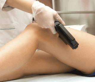 epilazione laser