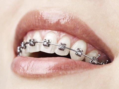 trattamenti di ortodonzia montale