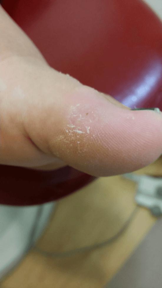 verruca sul piede