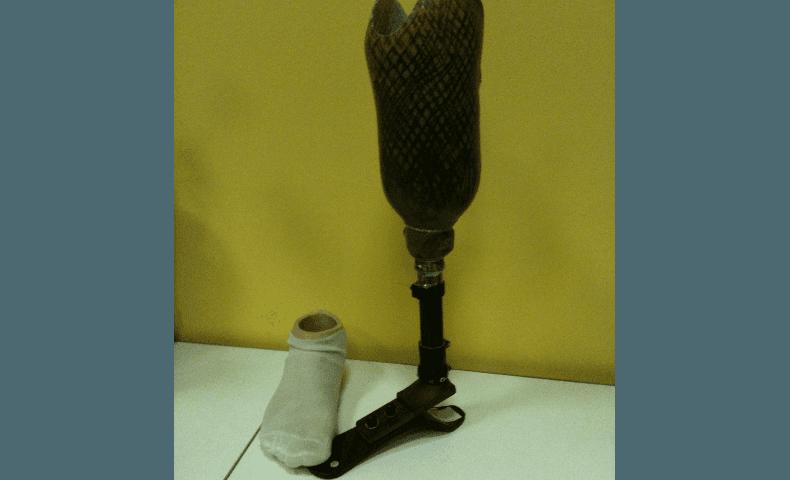 protesi realizzate su misura