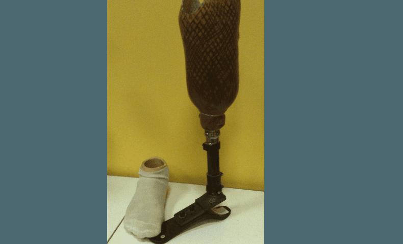 protesi realizzate artigianalmente