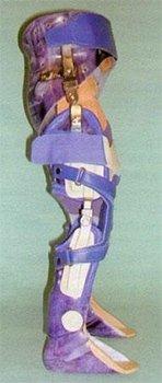 tutore tronco coscia gamba piede