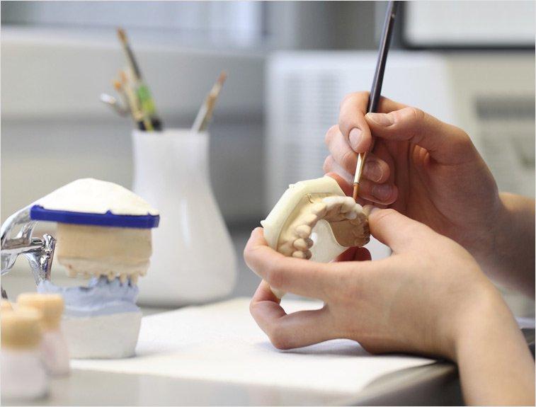 van noorden laboratories dental repairs