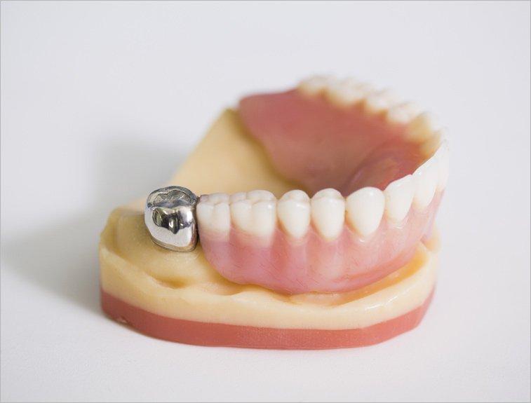 van noorden laboratories implant retained denture