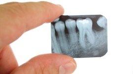 Radiografie dentali - Perugia