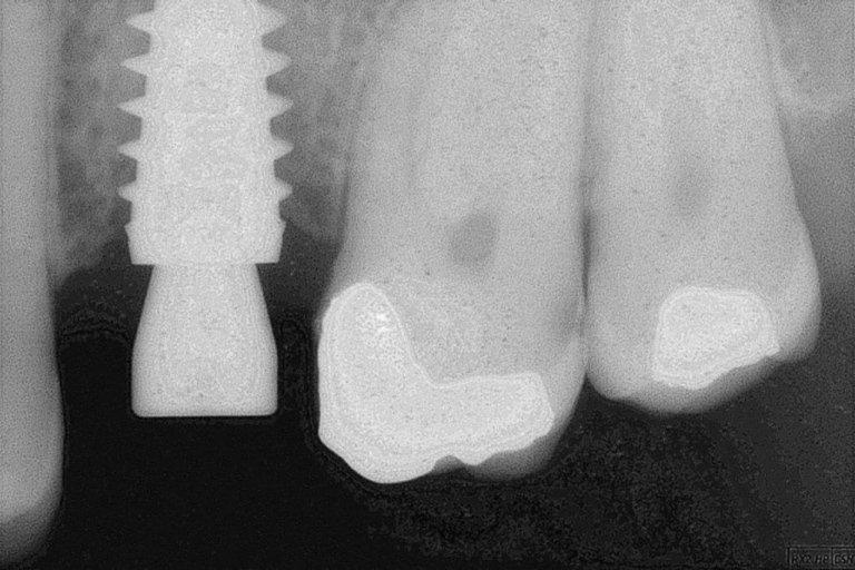 neoformazione ossea periimplantare dopo 3 mesi inserzione