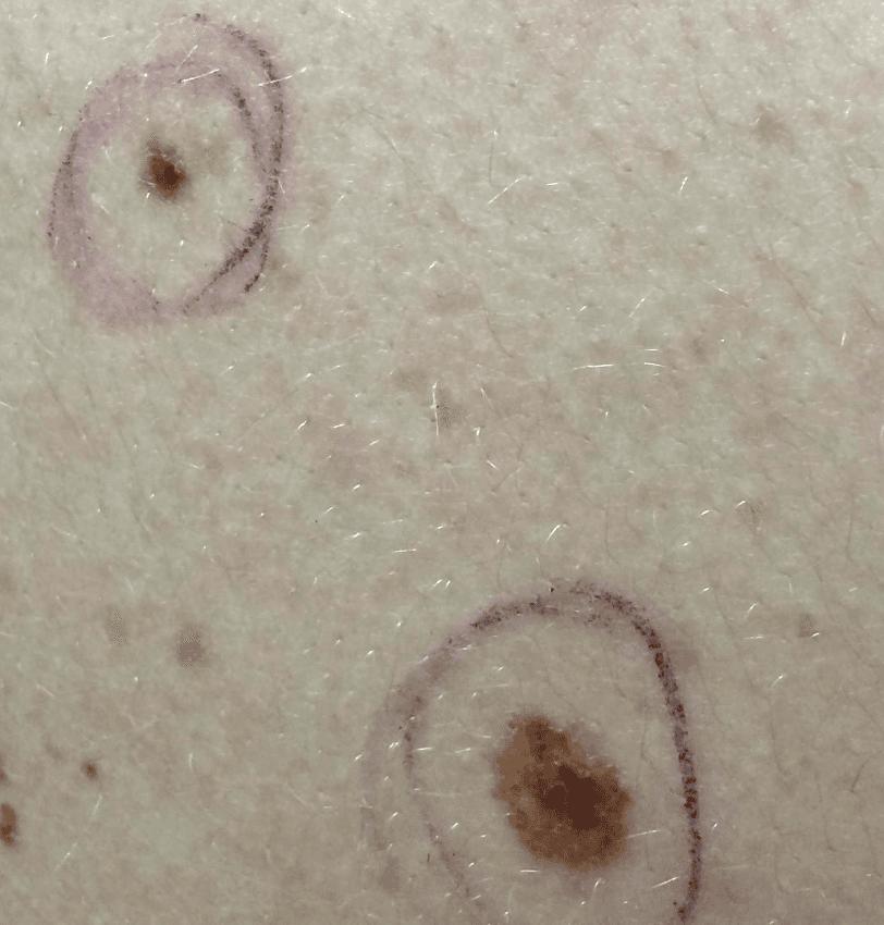 nevo melanocitici