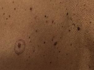 dermatologo ruvo puglia