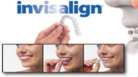 apparecchi per allineamento denti