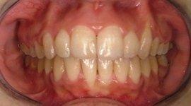 Rimozione molari