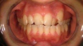 Inserimento capsule dentarie