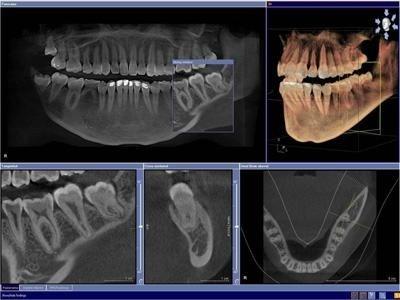 studio dentistico tac 3d