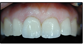 Trattamenti dentali