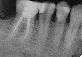 Endodonzia e ortodonzia