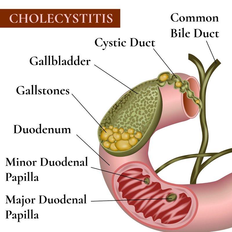 Natural Remedies for Gallbladder Pain