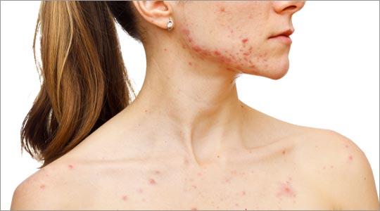 Acne Remedies Brooklyn NY Dr. Donna Sergi Holistic Chiropractor