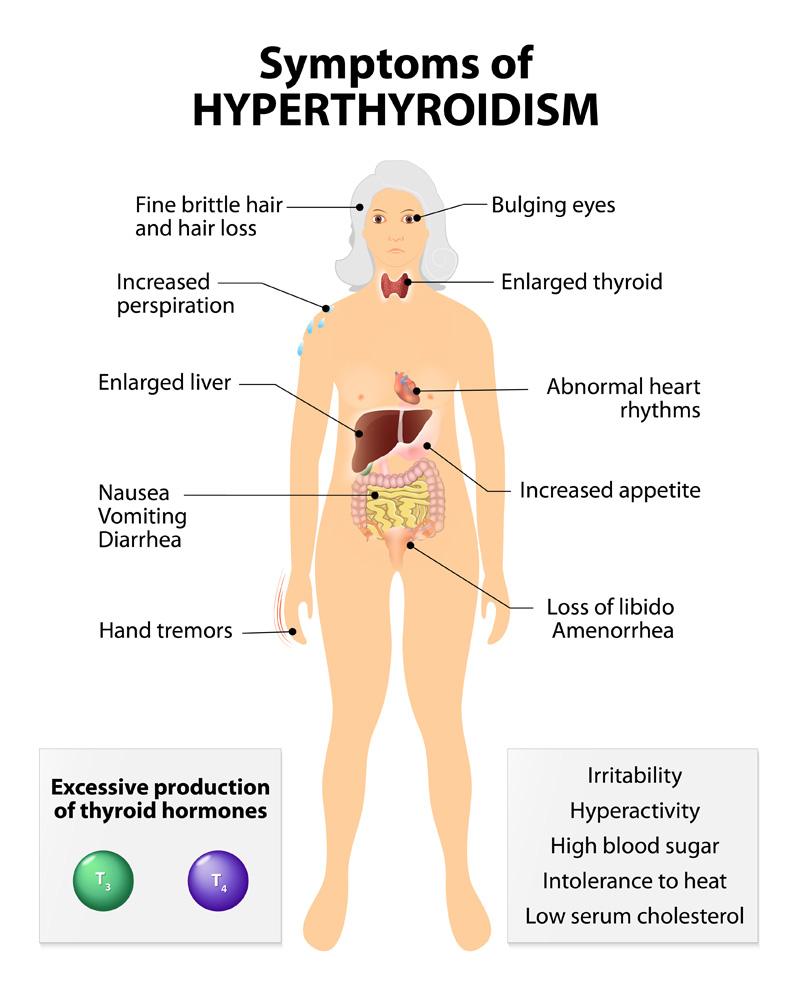 Hyperthyroidism Remedies Brooklyn Ny Dr Donna Sergi