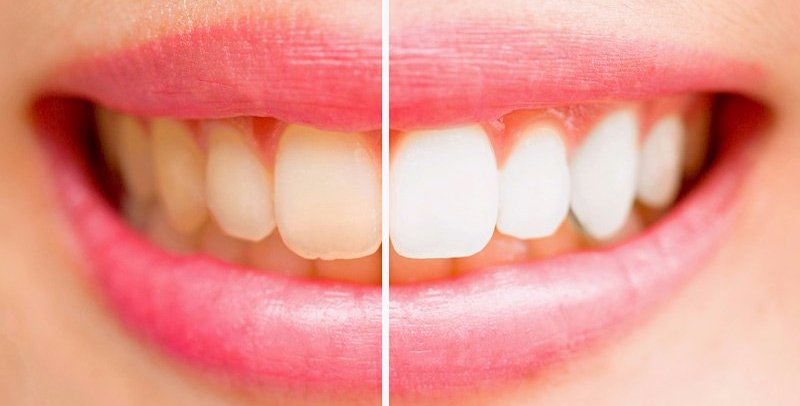 Before and after teeth whitening in Hobart