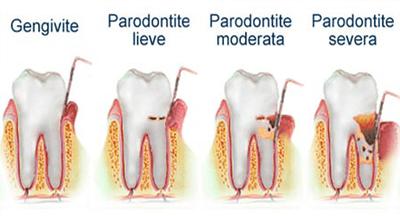 chirurgia-parodontale