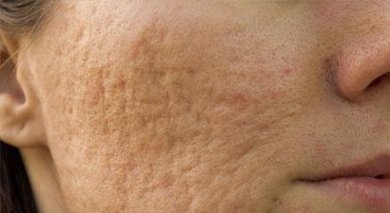cicatrici d'Acne