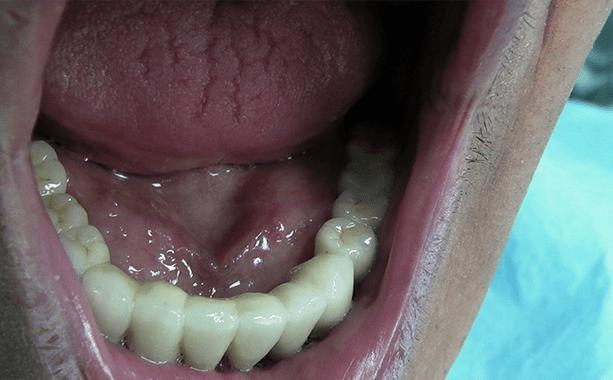protesi all in six inferiore