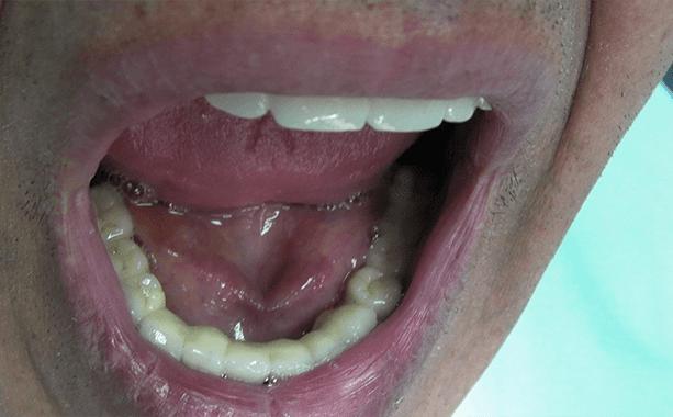 esempio protesi inferiore