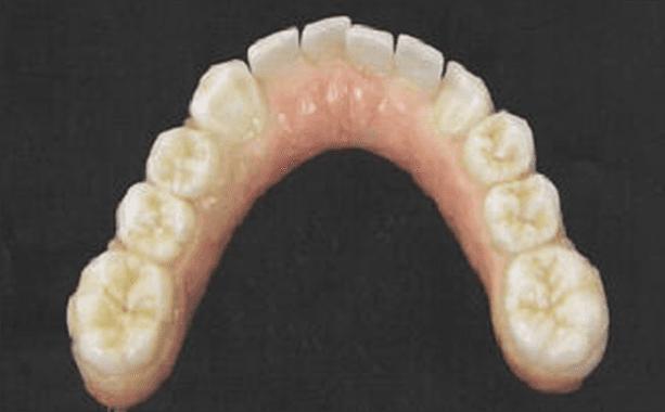 protesi implanto supportata superiore