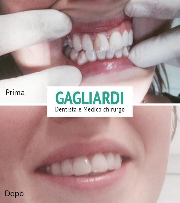 Faccette Estetiche Dentista Roma
