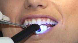 sbiancamento, laser, estetica dentale
