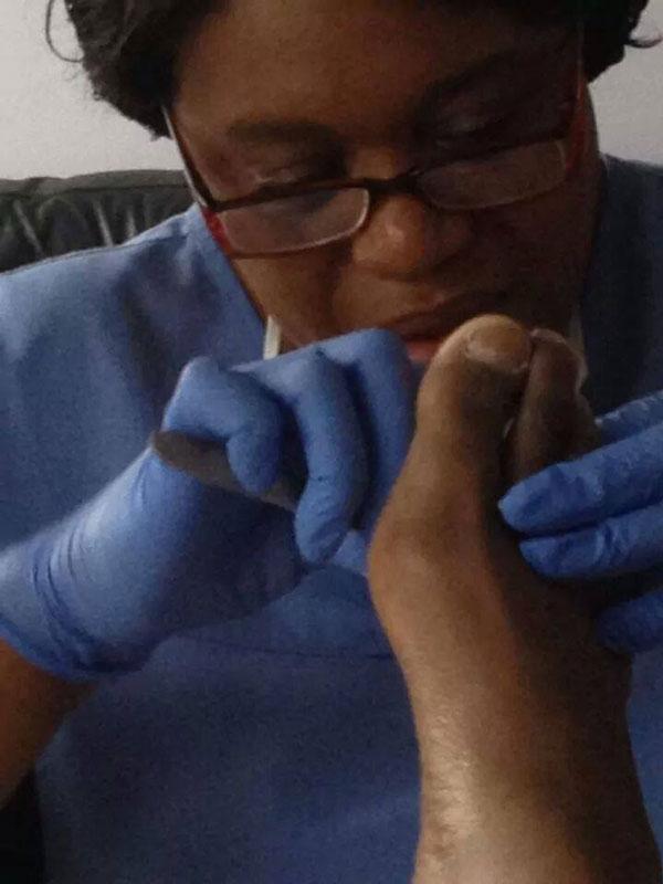 callus removal